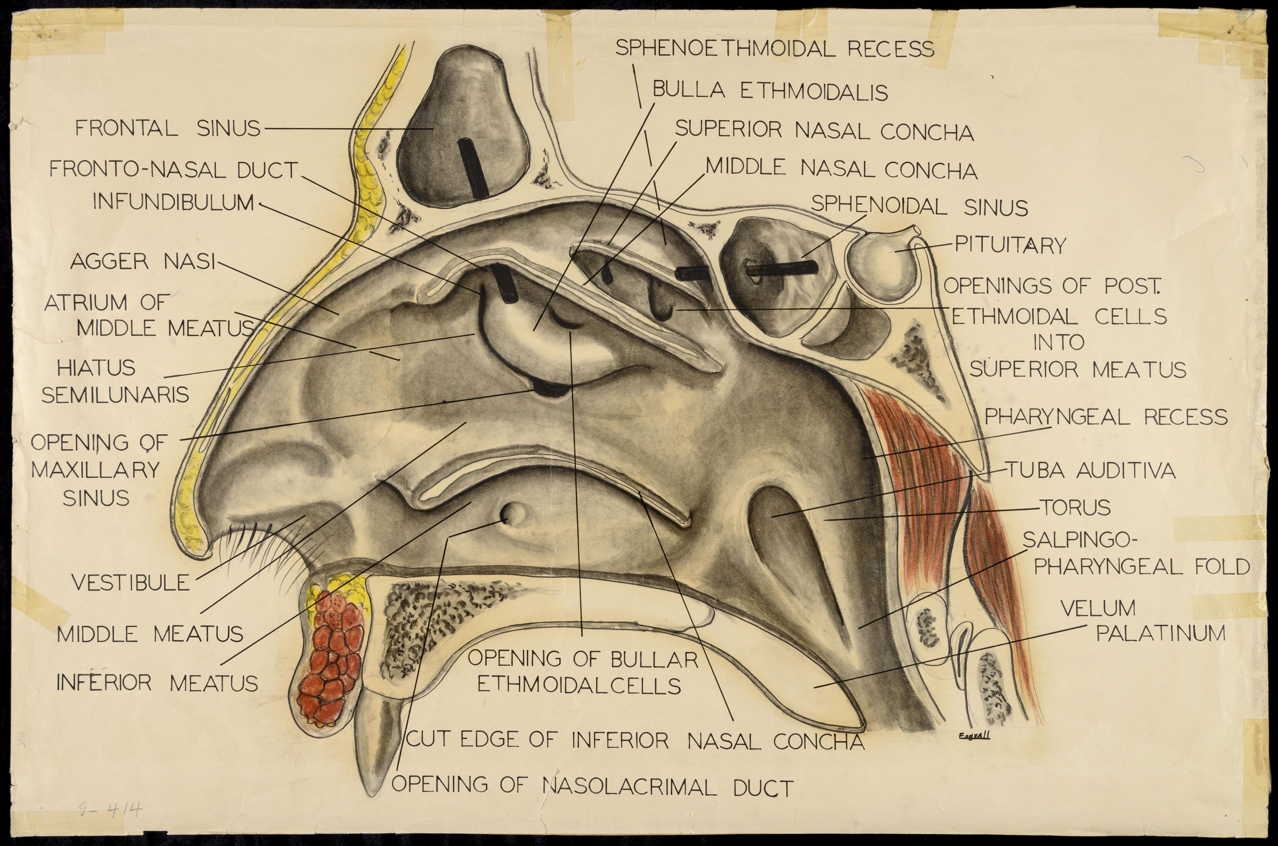 Frontal Sinus Fronto Nasal Duct Infundibulum Agger Nasi Atrium