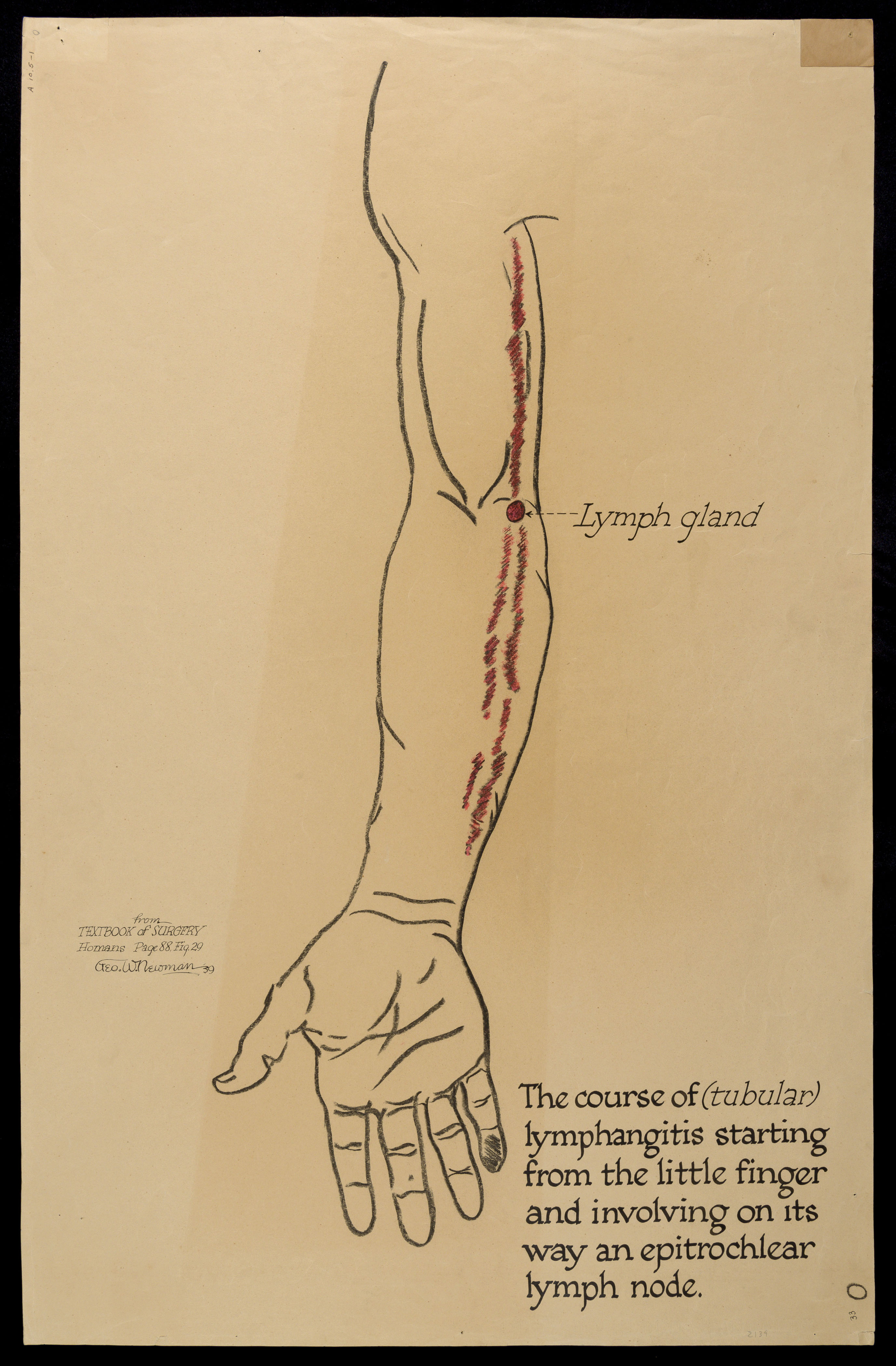 The Course Of Tubular Lymphangitis Starting From The Little Finger